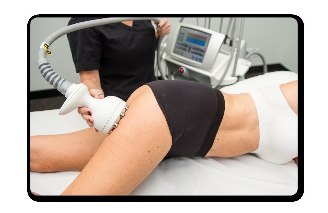 Beneficios Legacy - Melhora do contorno do corpo - pernas, abdomen e bumbum com radiofrequência