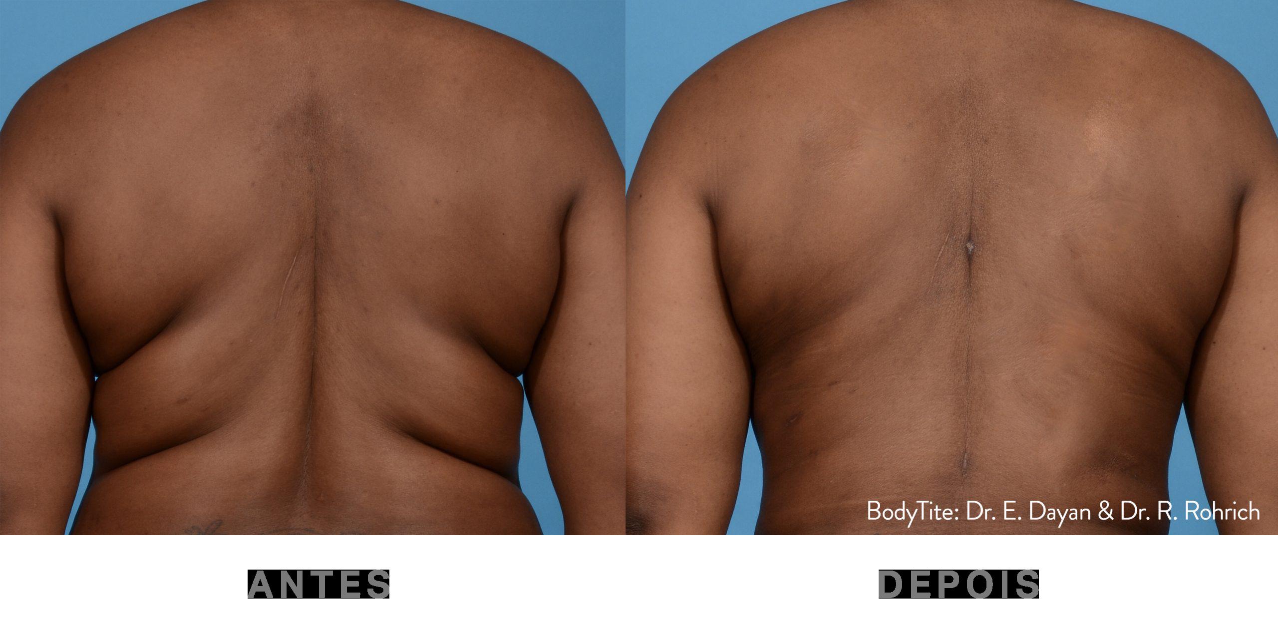 Antes e depois_BodyTite 1