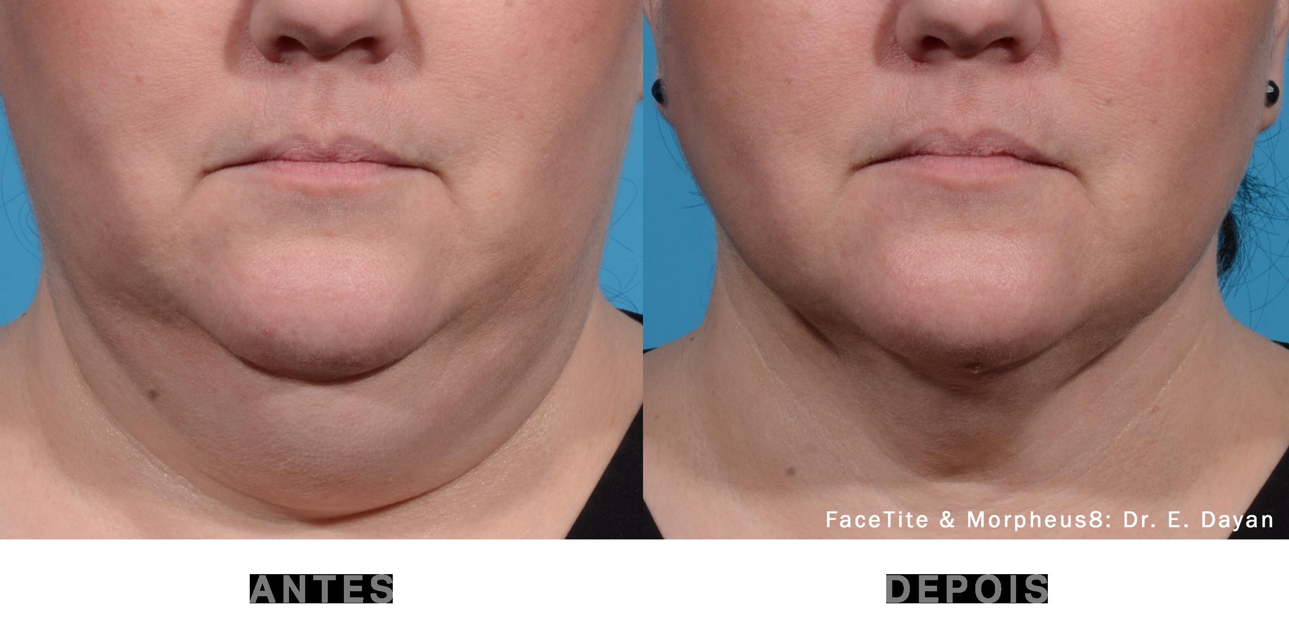 Antes e depois_FaceTite 1