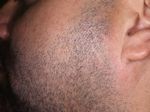 MedioStar - depilação laser antes e depois todos os fototipos