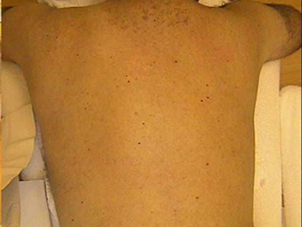 MedioStar - antes e depois depilação masculina a laser pele clara ou escura