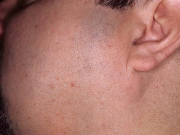 MedioStar - Depilação facial barba laser antes e depois