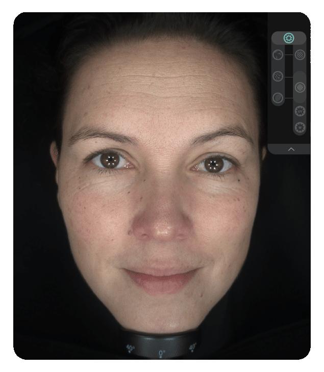 OBSERV 520x - Aparência da pele: Luz do dia