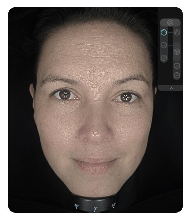 OBSERV 520x - Aparência da pele: Textura da superfície