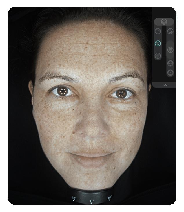 OBSERV 520x - Aparência da pele: Pigmentação
