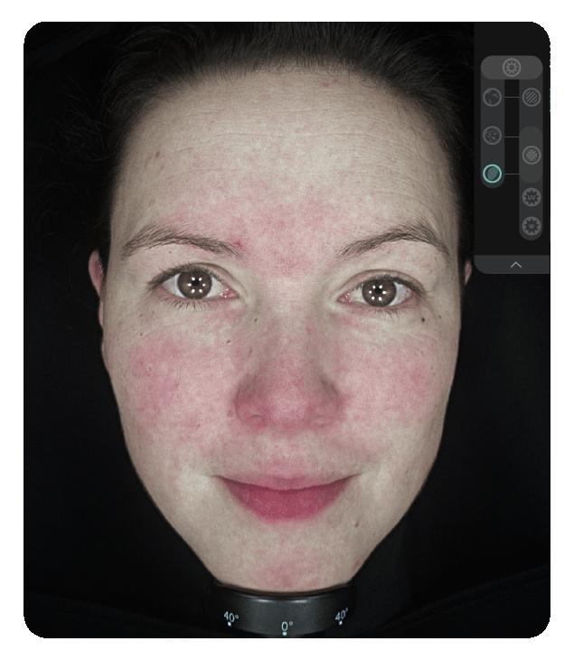 OBSERV 520x - Aparência da pele: Vascularização