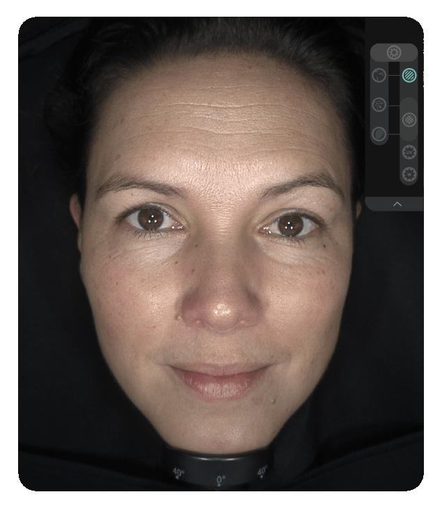 OBSERV 520x - Análise da pele: Polarizado Paralelo