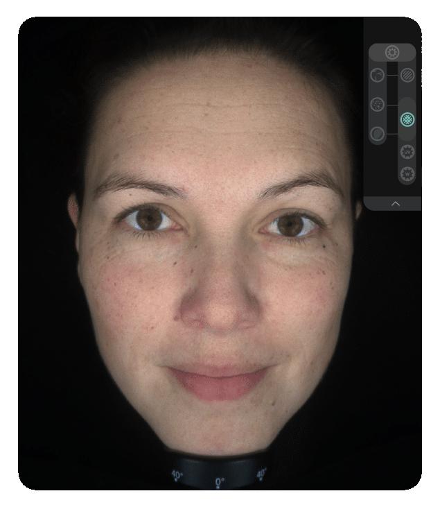 OBSERV 520x - Análise da pele: Polarizado Cruzado