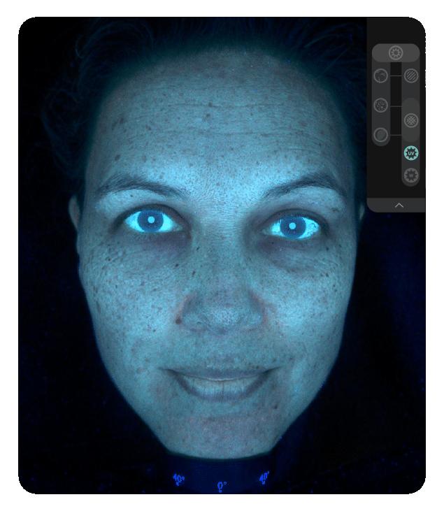 OBSERV 520x - Análise da pele: True UV