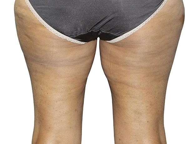 Depois - Legacy - equipamento para firmar pele das pernas para todas as idades