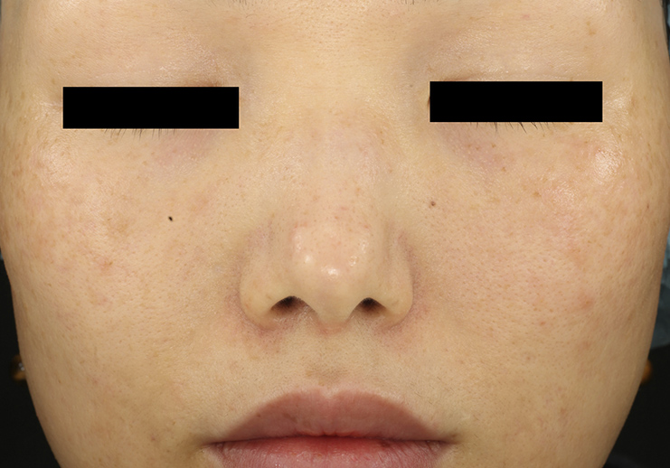 Depois_PicoWay - rejuvenescimento da pele a laser